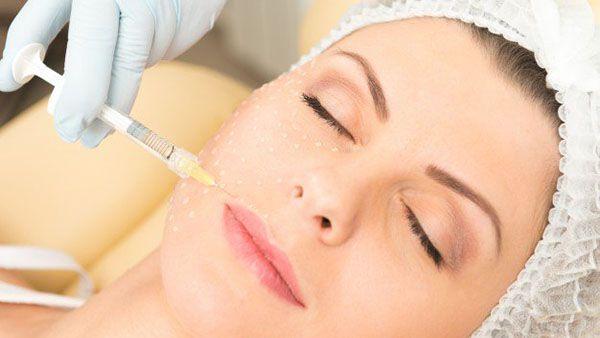 ¿Cómo aumentar los labios sin cirugía estética?