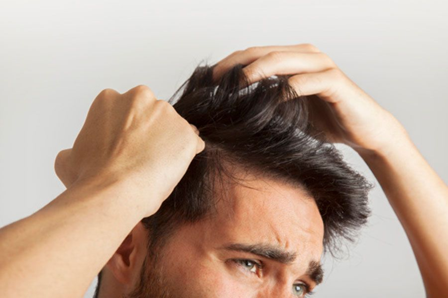alopecia androgenetica masculino