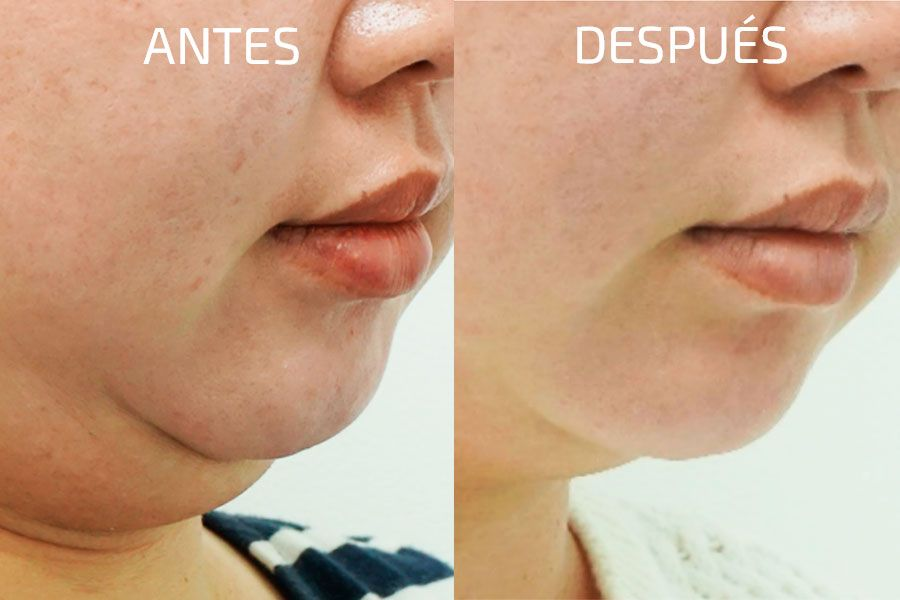 progreso-del-tratamiento-facial-con-clatuu-alpha