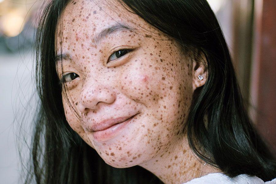 Factores que influyen en la salud de la piel del rostro