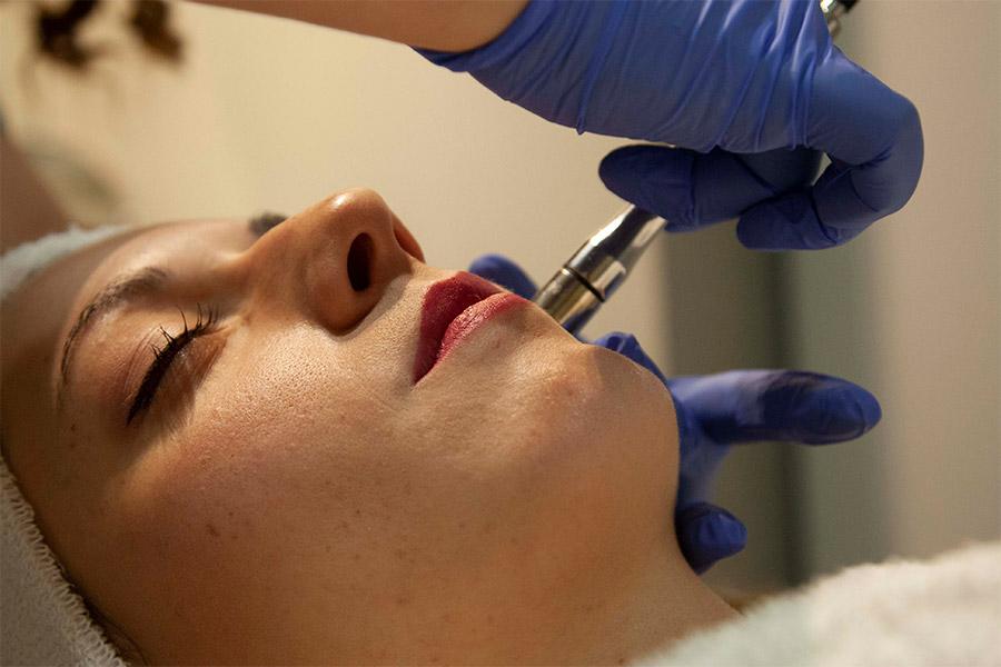 tratamiento facial barrio salamanca