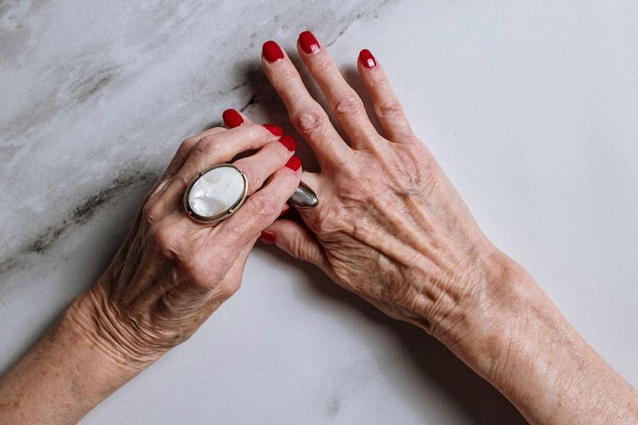 tratamientos rejuvenecimiento manos madrid